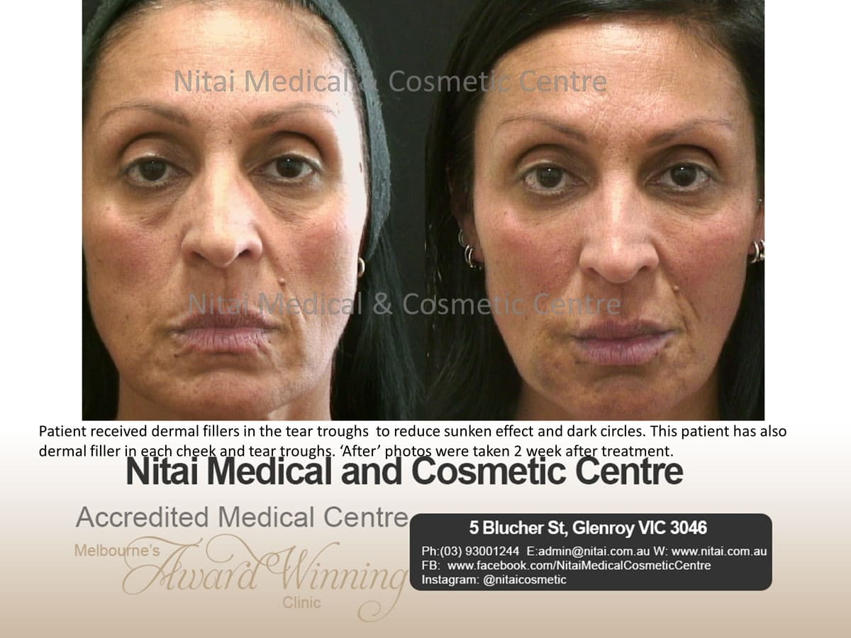 Tear Trough Treatment - Nitai Medical & Cosmetic Centre