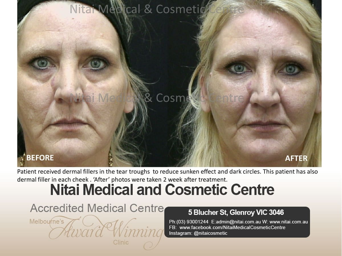 Tear Trough Melbourne - Nitai Medical & Cosmetic Centre