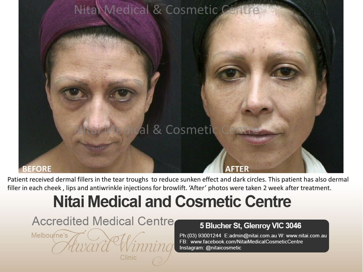 Tear Trough Dermal Fillers Melbourne - Nitai Medical & Cosmetic Centre