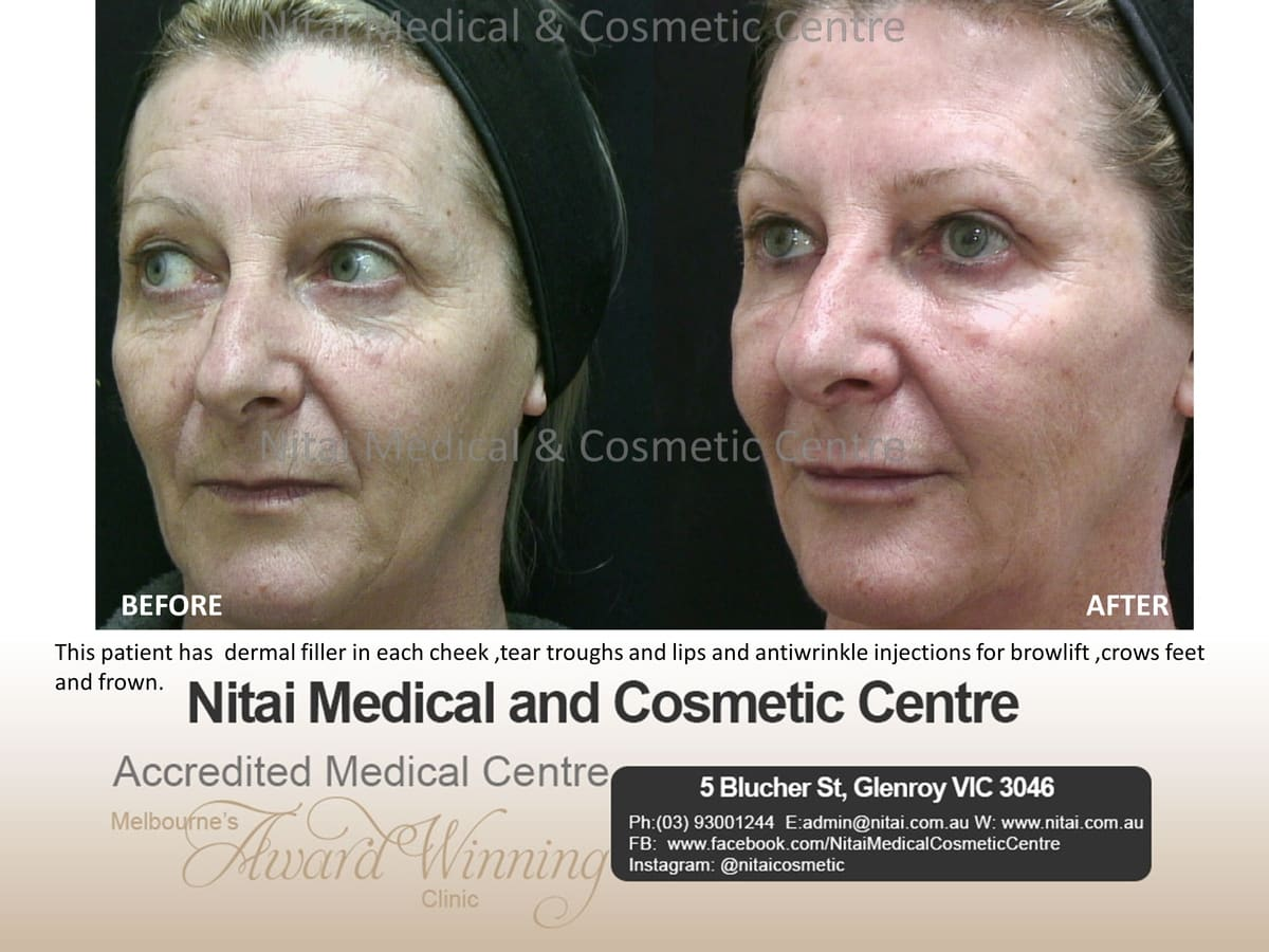 Dermal Fillers Tear Troughs Melbourne - Nitai Medical & Cosmetic Centre