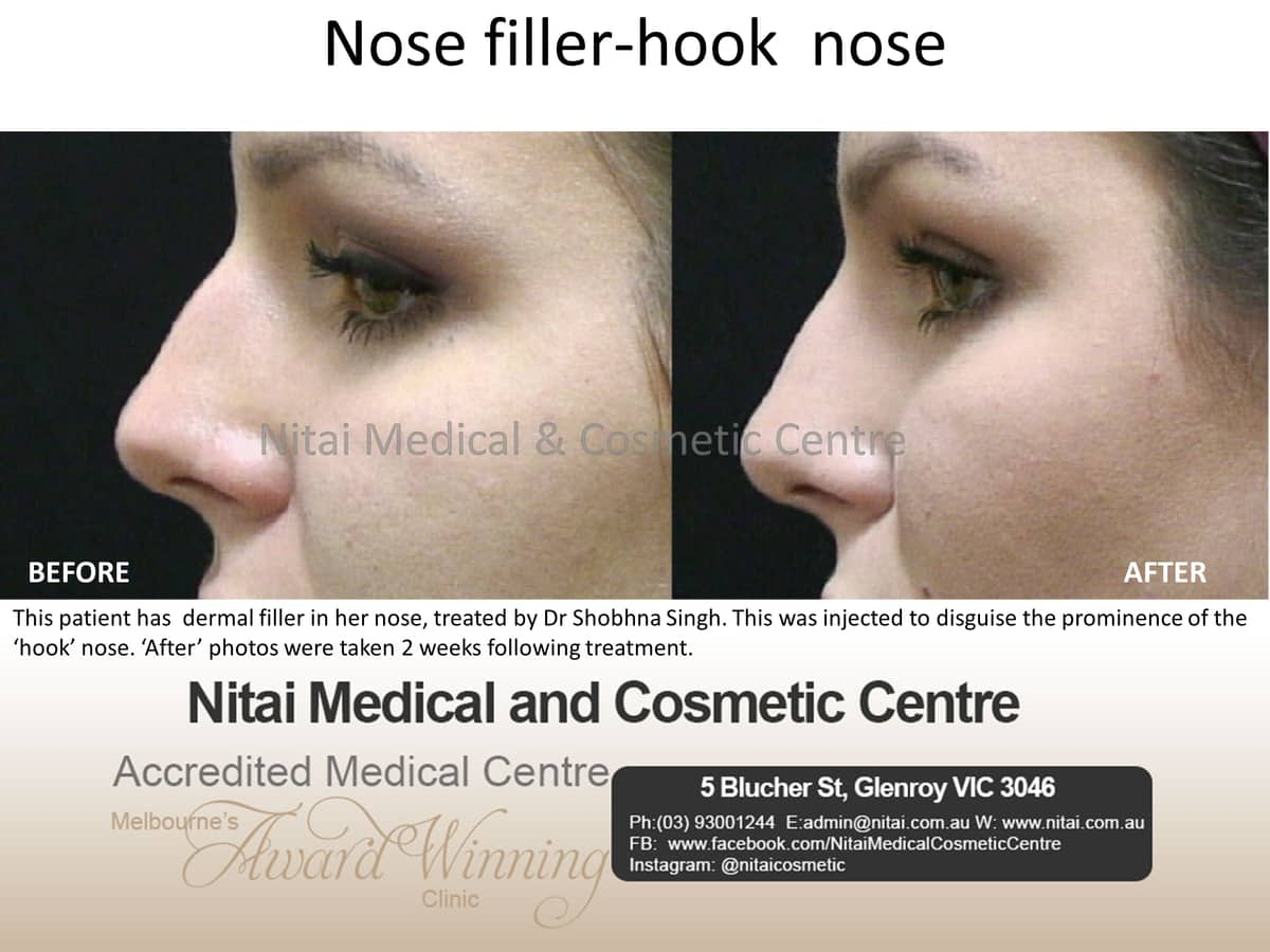 Nose Reshapiing - Nitai Medical & Cosmetic Centre