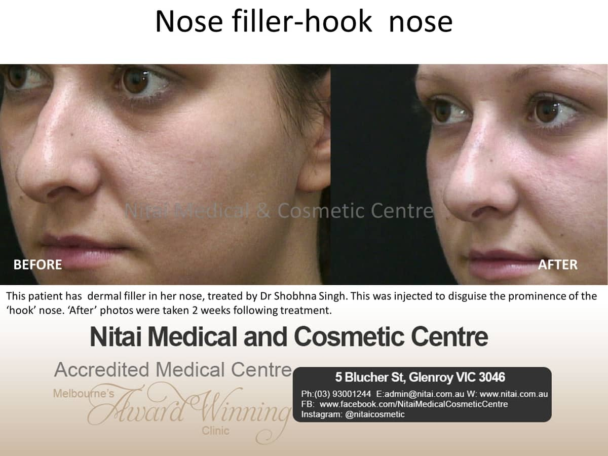 Nose Reshaping Images