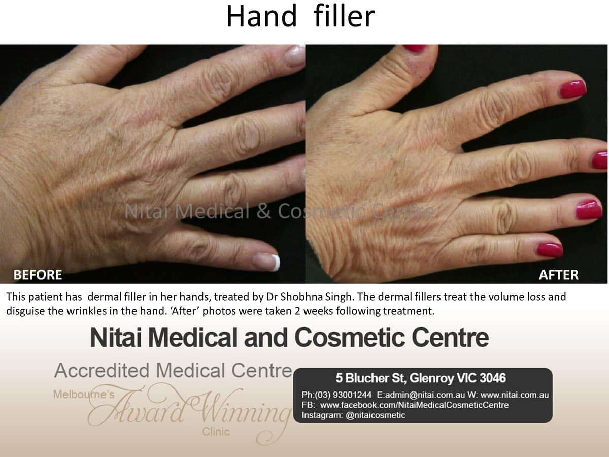 Hand Fillers - Nitai Medical & Cosmetic Centre