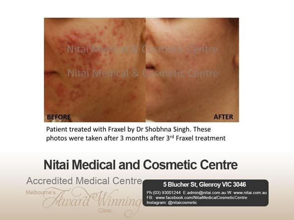 Acne Scarring - Nitai Medical & Cosmetic Centre