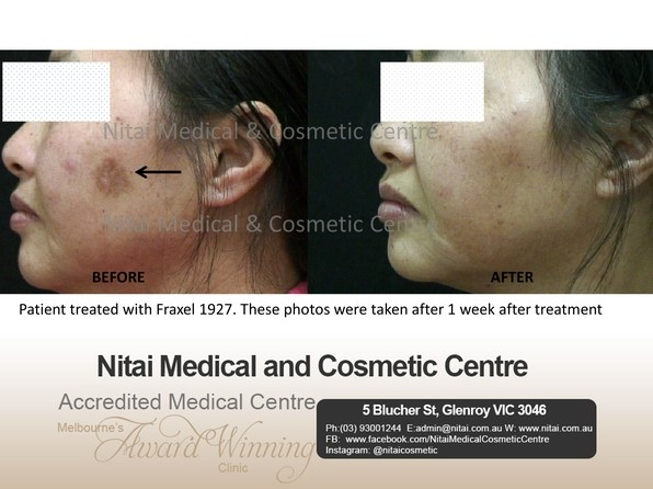 Scarring Treatment Images