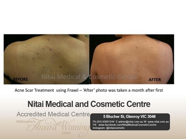 Fraxel Laser Treatment Melbourne - Nitai Medical & Cosmetic Centre