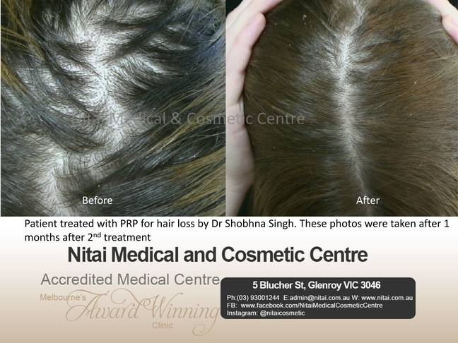 Nitai Medical and cosmetic centre - PRP for hair loss