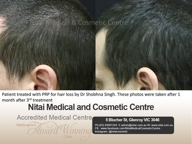 Nitai Medical and cosmetic centre - Hair