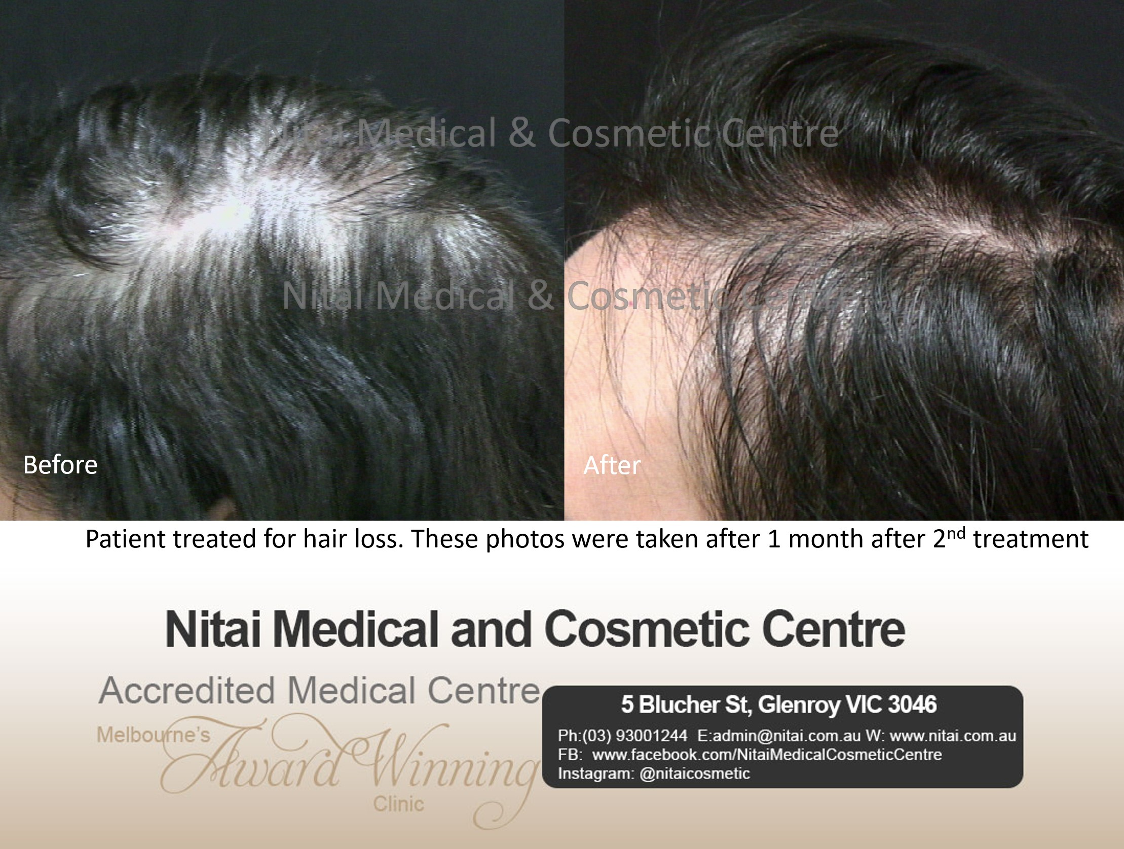Hairloss Treatment Images
