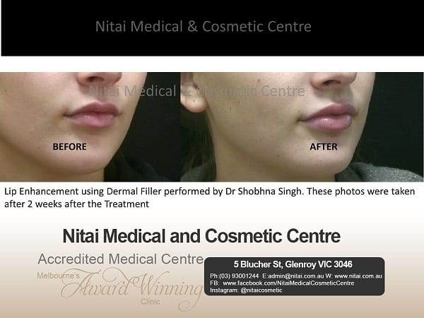 Lip Fillers - Nitai Medical & Cosmetic Centre