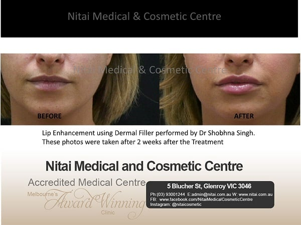 Lip Enhancement - Nitai Medical & Cosmetic Centre