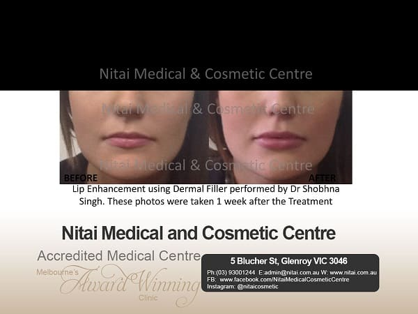 Lip Filler and Antiwrinkle Injection Offer
