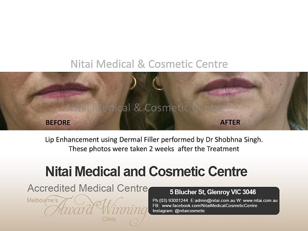Lip Filler Treatment Melbourne - Nitai Medical & Cosmetic Centre
