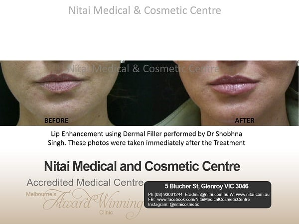 Lip Filler Melbourne - Nitai Medical & Cosmetic Centre