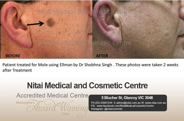 Moles Skin Tags Images