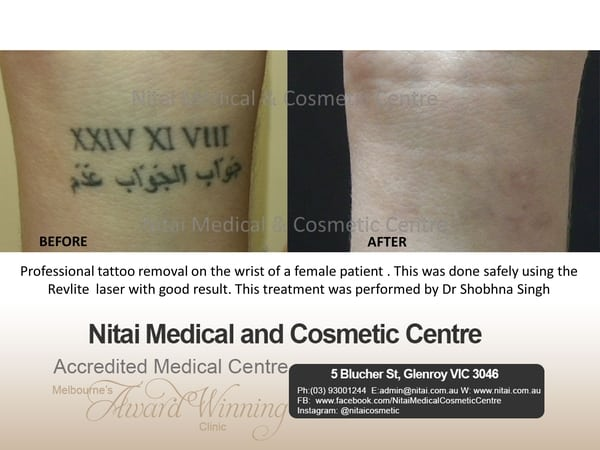 Tattoo Removal Images