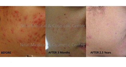 Acne Scarring Treatment Melbourne - Nitai Medical & Cosmetic Centre