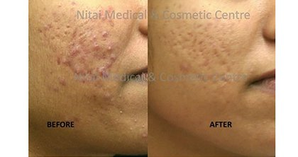 Acne Treatments Melbourne - Nitai Medical & Cosmetic Centre