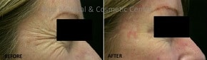 antiwrinkle injections before after