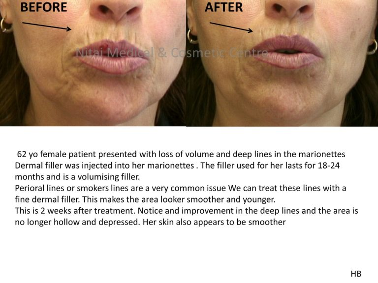 Dermal fillers for Marionette Lines Melbourne - Nitai Cosmetic