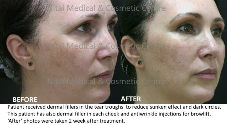 Dermal Fillers for Sunken Eyes Melbourne - Nitai Cosmetic