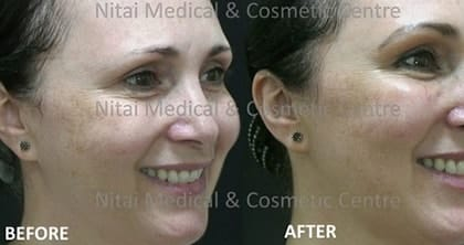 Dermal Fillers Melbourne - Nitai