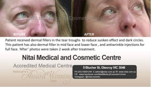 EYE BAGS - Nitai Medical & Cosmetic Centre