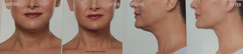Double Chin Before & After Treatment Wth Kybella - Nitai