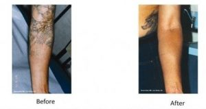 Laser Tattoo Removal Melbourne - Nitai Cosmetic
