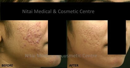 acne-treatment-melbourne - Nitai Medical & Cosmetic Centre