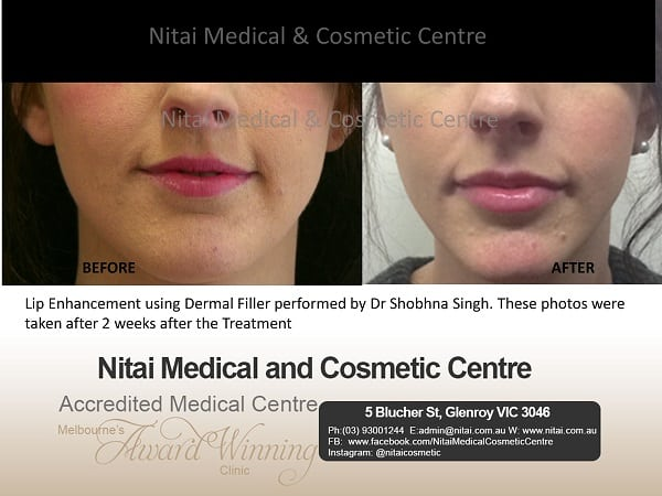 Lip Filler Treatment - Nitai Medical & Cosmetic Centre