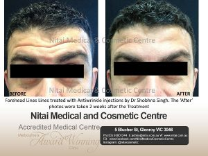 Forehead lines in Melbourne - Nitai Medical & Cosmetic Centre
