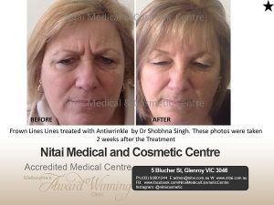 Frown Lines Lines Melbourn - Nitai Medical & Cosmetic Centre