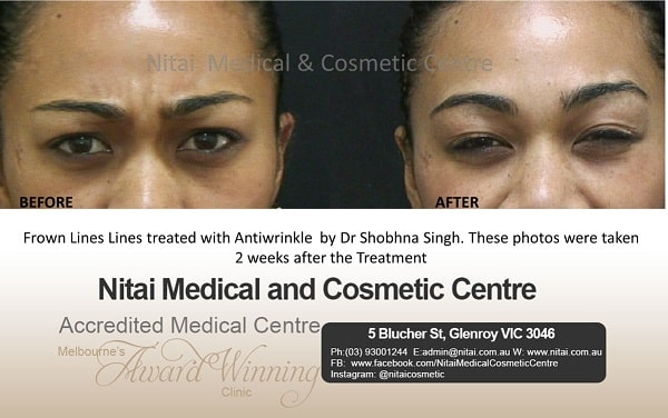 Frown lines lines treated - Nitai Medical & Cosmetic Centre