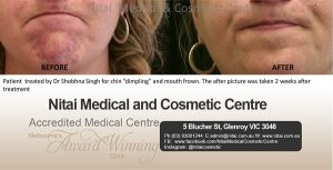 Chin Dimpling and Mouth Frown - Nitai Medical & Cosmetic Centre
