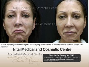 Dimpling and Mouth Frown - Nitai Medical & Cosmetic Centre