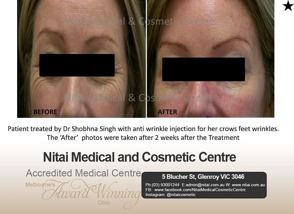 Anti Wrinkle Injection - Nitai Medical & Cosmetic Centre