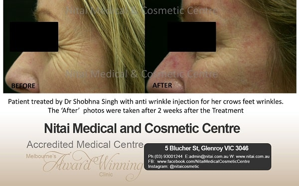 Crows Feet Traetment in Melbourne - Nitai Medical & Cosmetic Centre