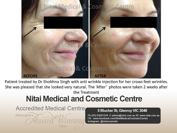 Anti Wrinkle Injection Treatment - Nitai Medical & Cosmetic Centre