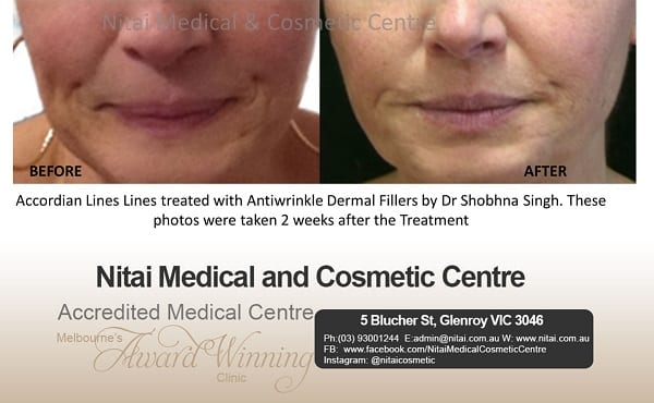 Accordian lines lines treated with antiwrinkle dermal fillers