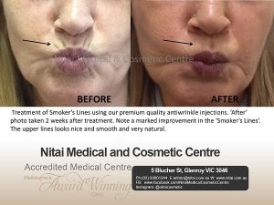 Smokers Lines Treatment - Nitai Medical & Cosmetic Centre