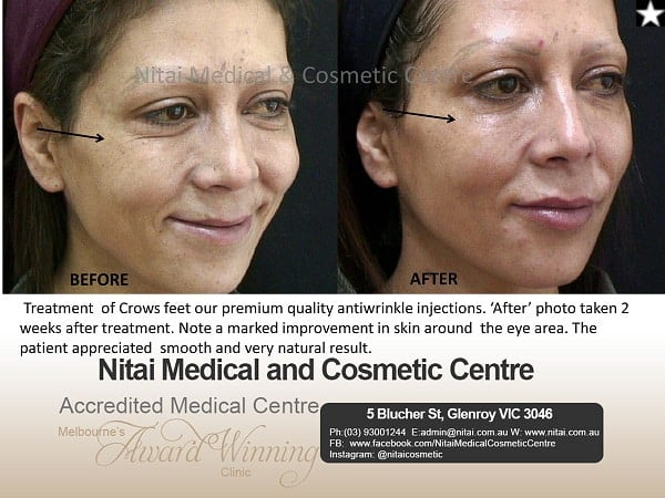 Treatment of Crows feet our premium quality antiwrinkle injections