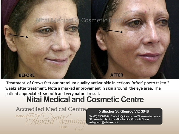 Anti Wrinkle Injection in Treatment - Nitai Medical & Cosmetic Centre
