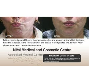 Smoker's Lines in Melbourne - Nitai Medical & Cosmetic Centre