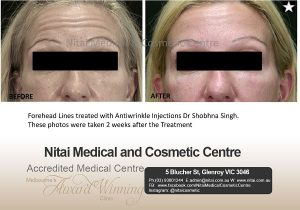 Forehead lines treated with Antiwrinkle injections