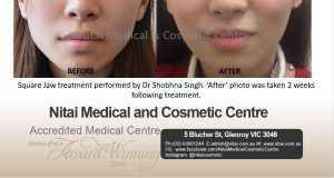 Nitai Medical and cosmetic centre - Square Jaw treatment