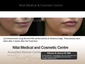 Lip Enhancement at Nitai Clinic