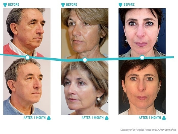 Thread Lift Treatment Melbourne - Nitai Medical & Cosmetic Centre