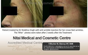 Anti-Wrinkle Injections Before After | Nitai Clinic