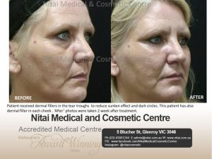 Dermal Fillers Before After | Nitai Clinic